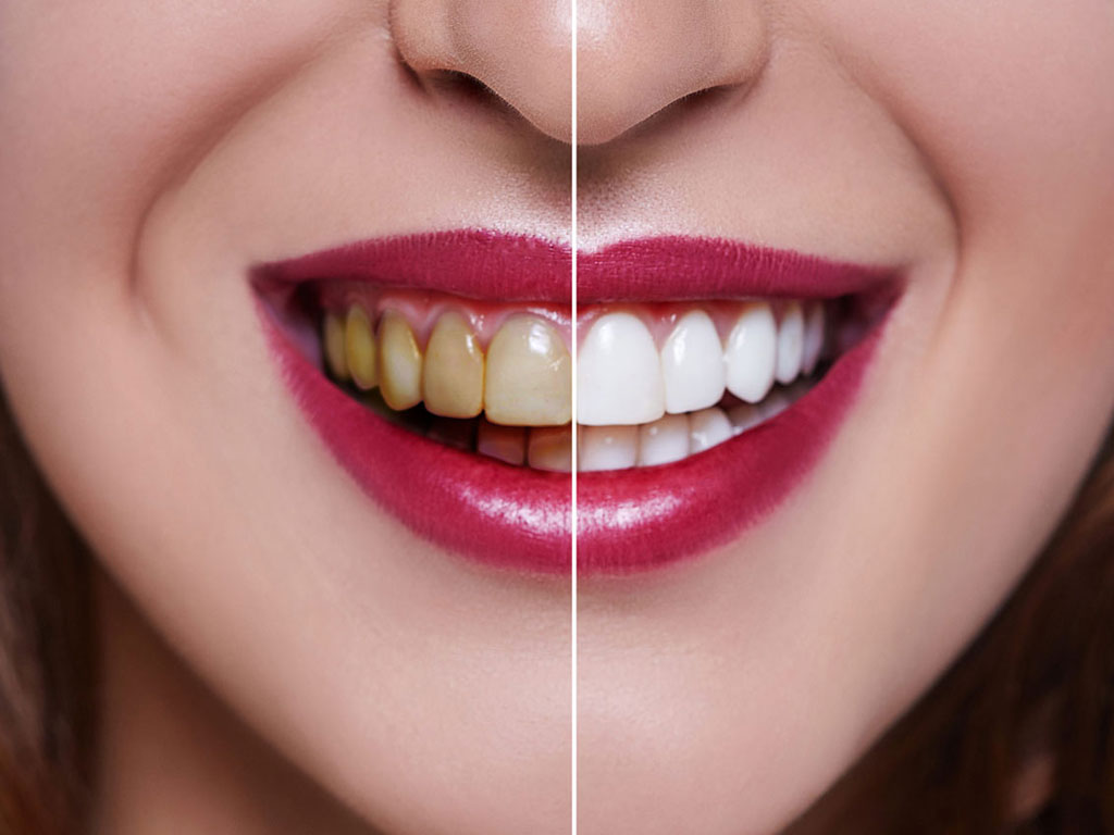 Things to Know about Dental Veneers